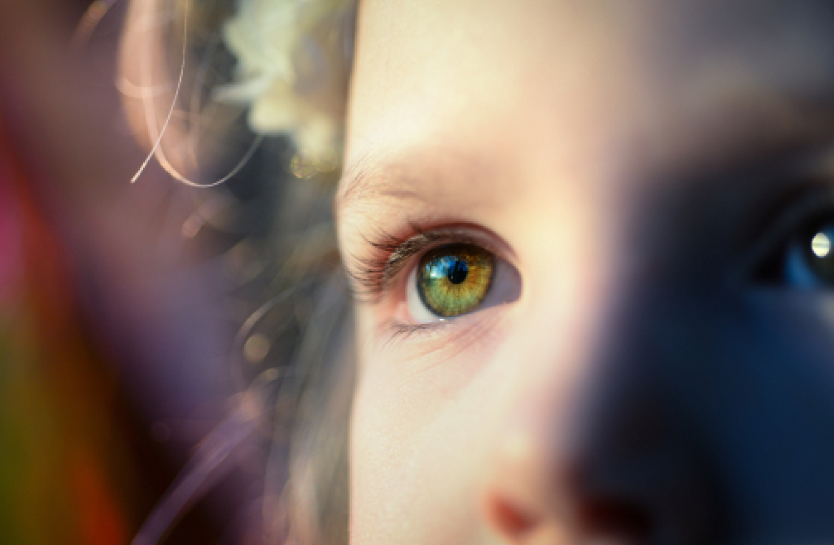 Close up of a child with epilepsy and autism's eye