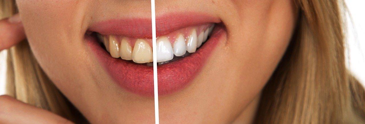 Zahnbleaching - vorher / nachher Vergleich