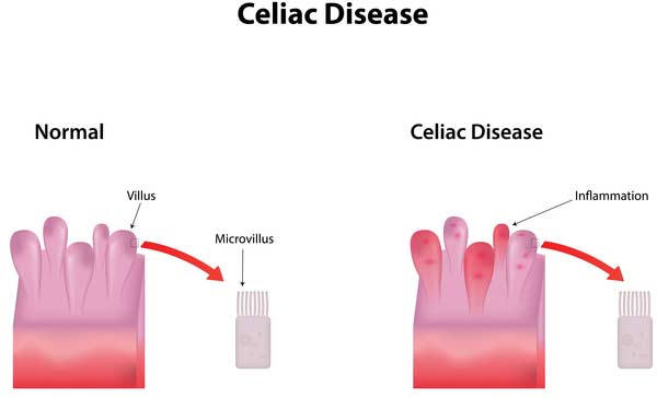 special diet catering - coeliac disease
