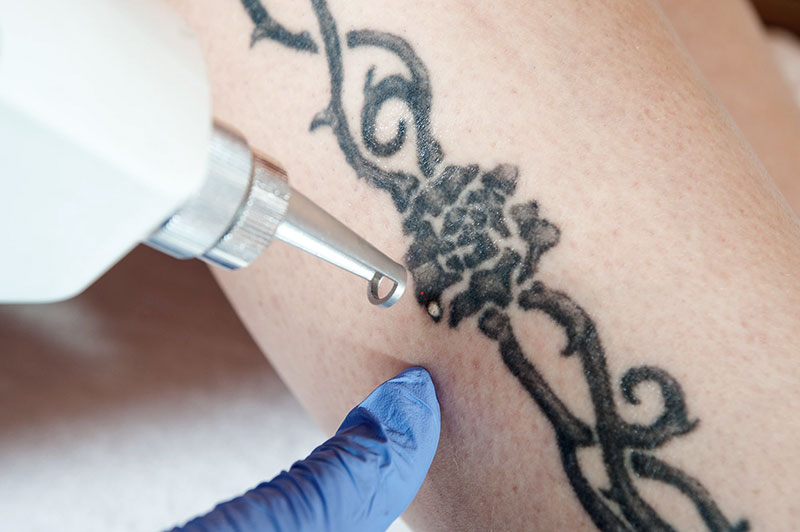 PICO Tattoo Removal on old faded tattoo