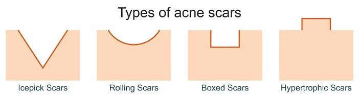 What are the types of acne scars (Diagram)