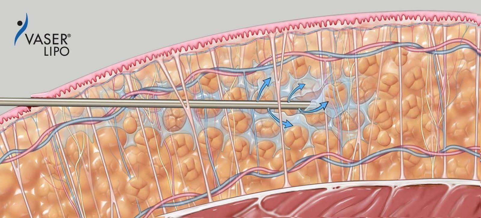 VASER Liposuction Singapore Amaris B Clinic Process Infiltration  2