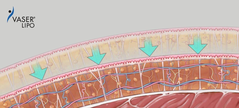 VASER Liposuction Singapore Amaris B Clinic Process Skin Retraction Collagen Stimulation