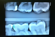 Logicon Caries (Decay) Detection