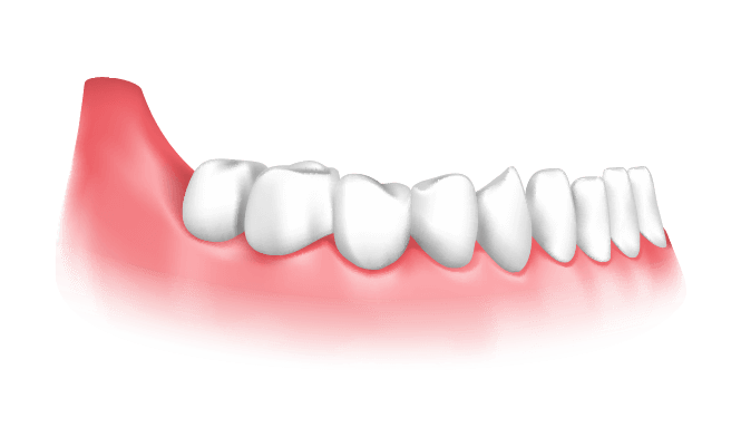 Implant Support Removable Denture