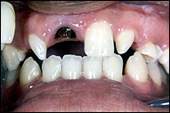 Dental Gallery Before And After