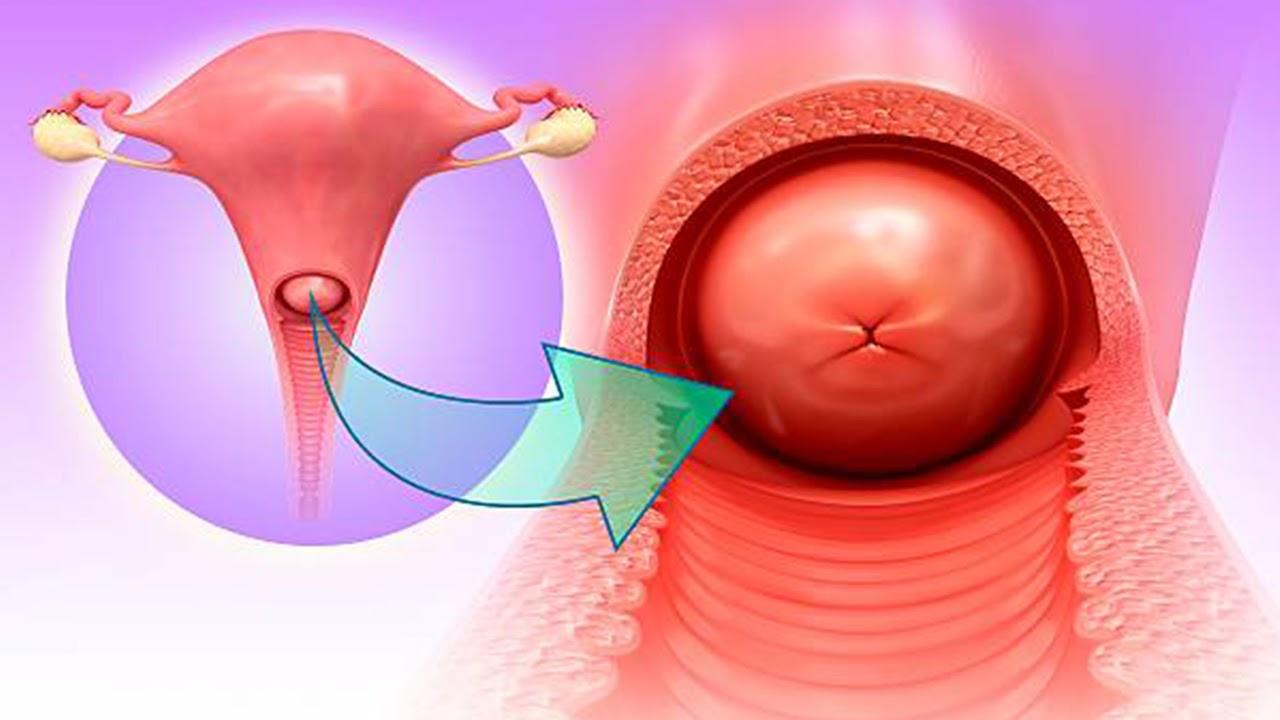 hình ảnh cách chữa trị viêm lộ tuyến cổ tử cung qua các giai đoạn