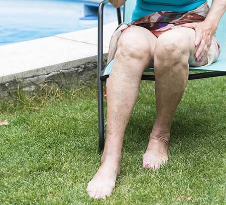 Senior woman showing legs with healthy veins - UK Vein Clinic varicose vein service