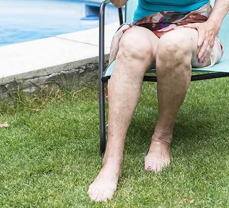 Senior woman showing legs with healthy veins - UK Vein Clinic varicose vein service