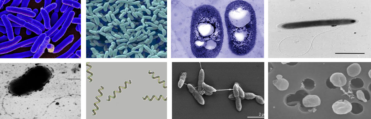 an array in a grid of different types of microbes