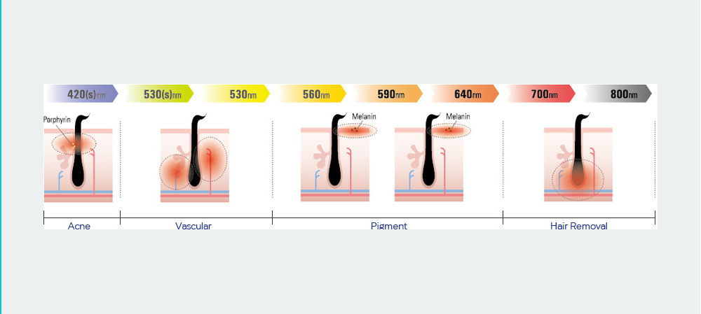 SmoothCool Acne Vascular Pigment and Hair Removal