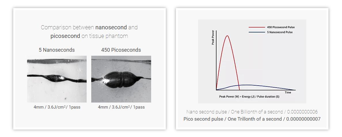 Nanosecond vs. Picosecond