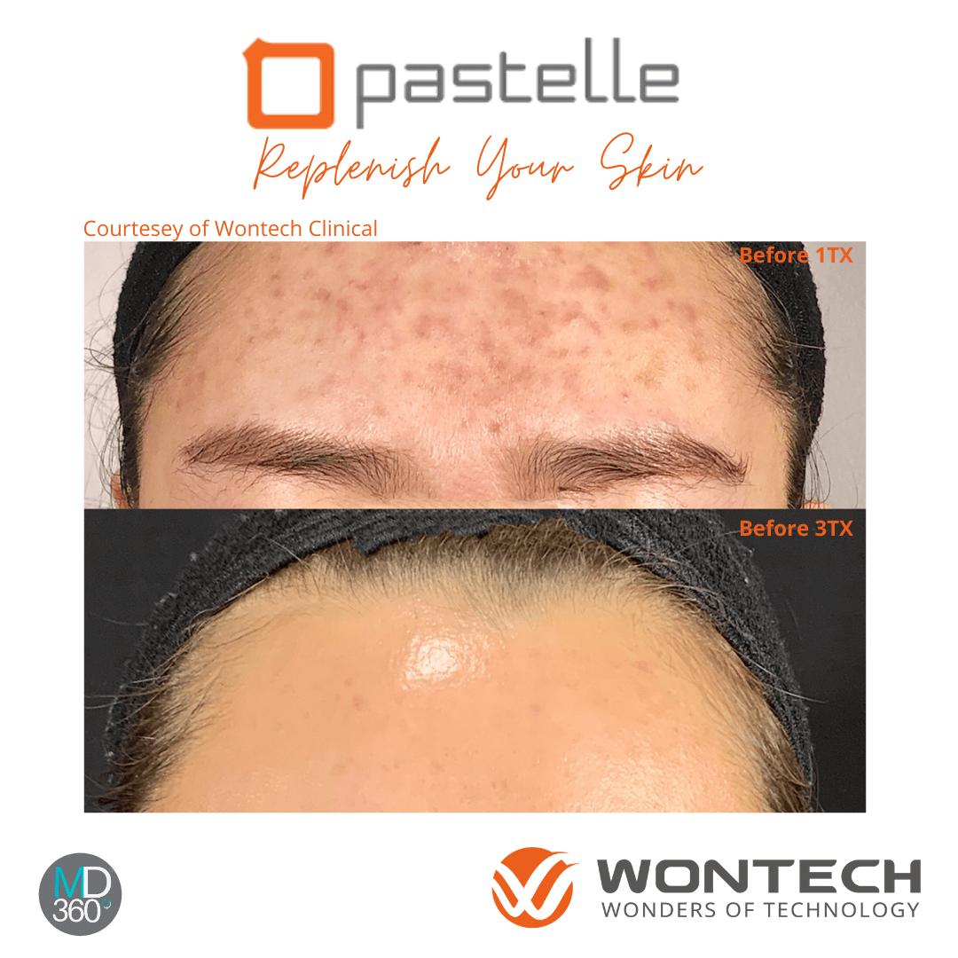 Pastelle Active Acne Paste
