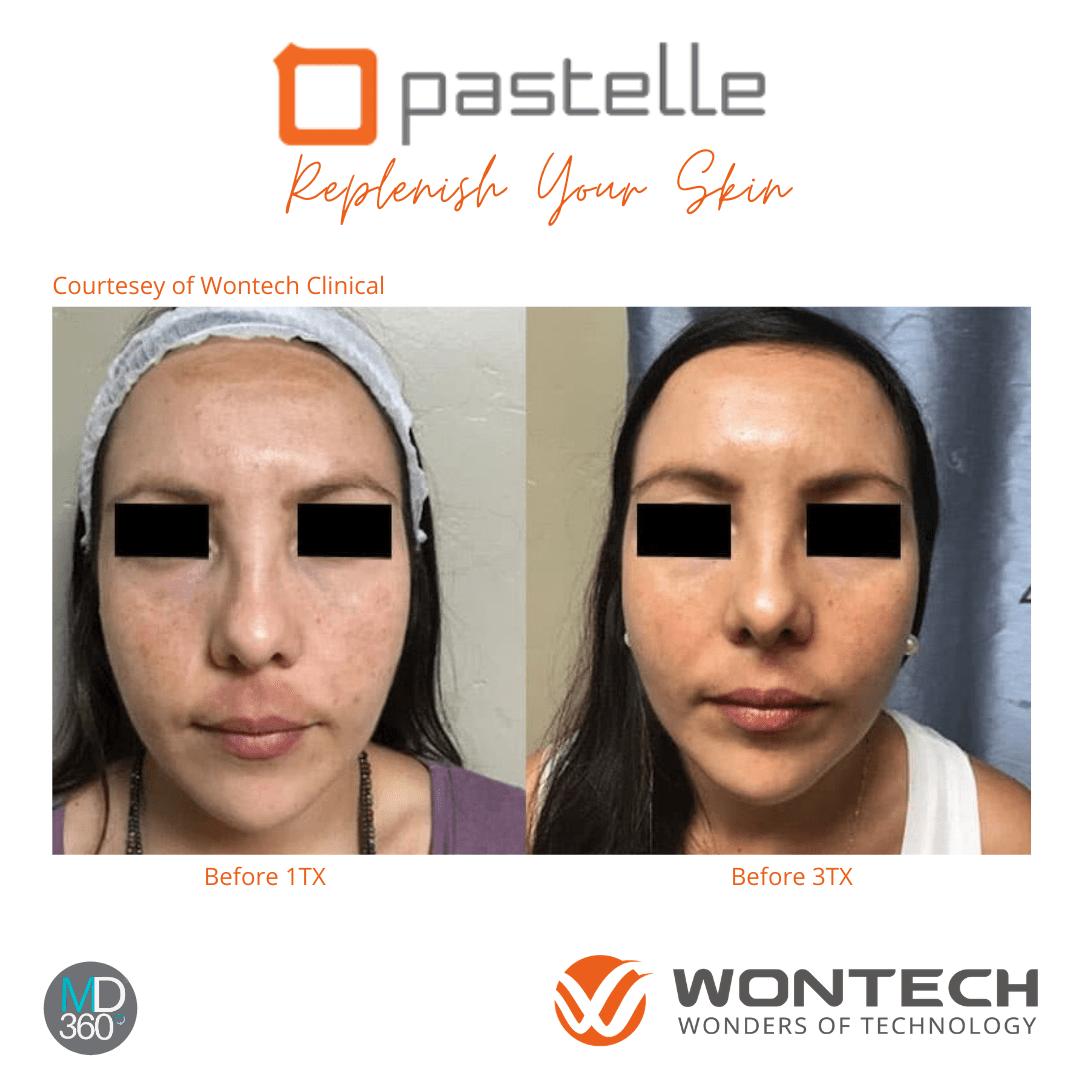 Pastelle - Replenish Your Skin
