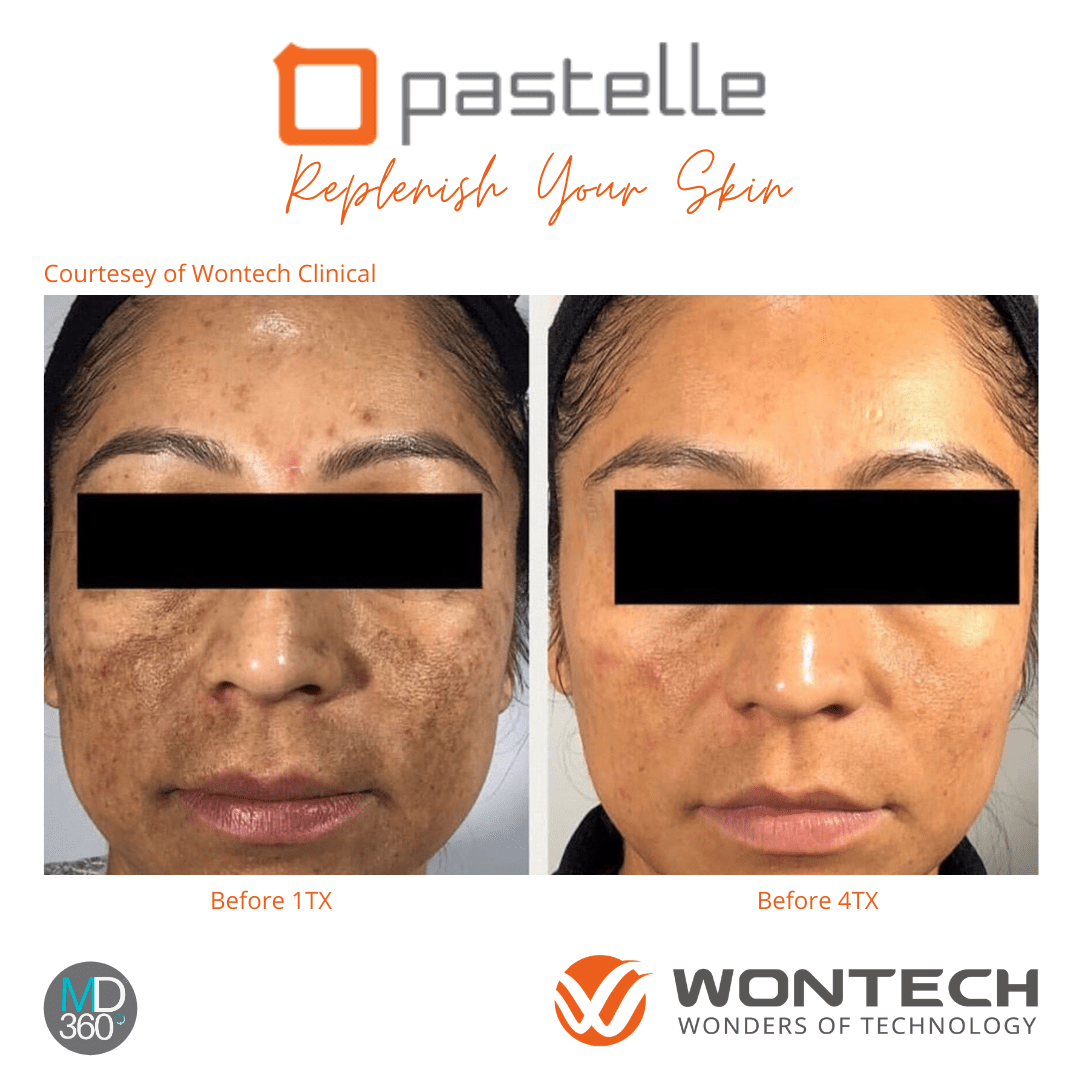 Pastelle Melasma Before and After