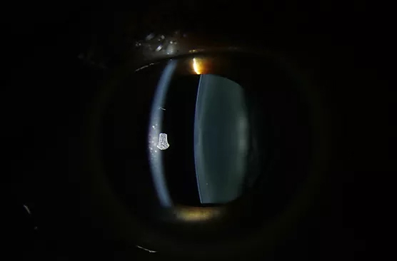 (B) Lens in a 40 year old