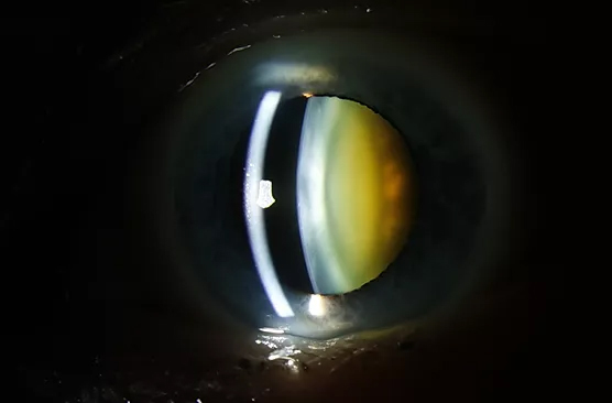 (C) Cataract in a 70 year old