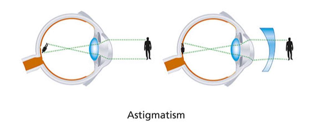 Astigmatism (Irregularly Shaped Eyeball)