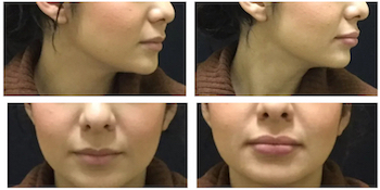 lip injections newport beach 3