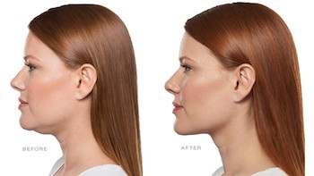jawline contour before and after