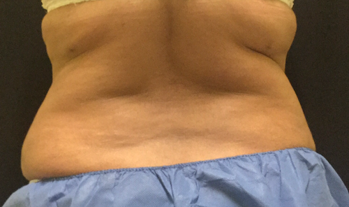Coolsculpting bra roll back before treatment