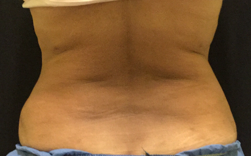 Coolsculpting bra roll back after treatment