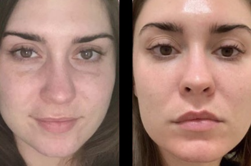 under eye filler before after