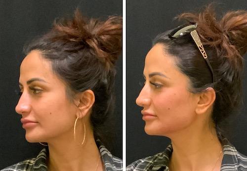 thread facial lift