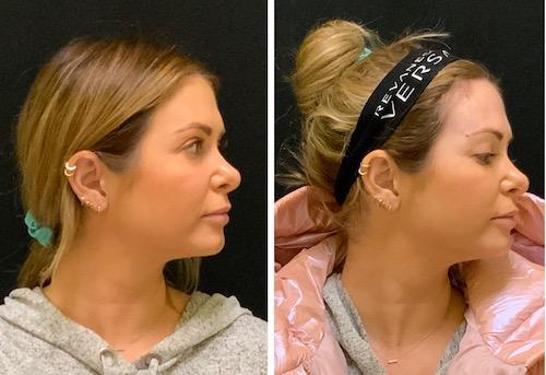 facial threading lift with pdo