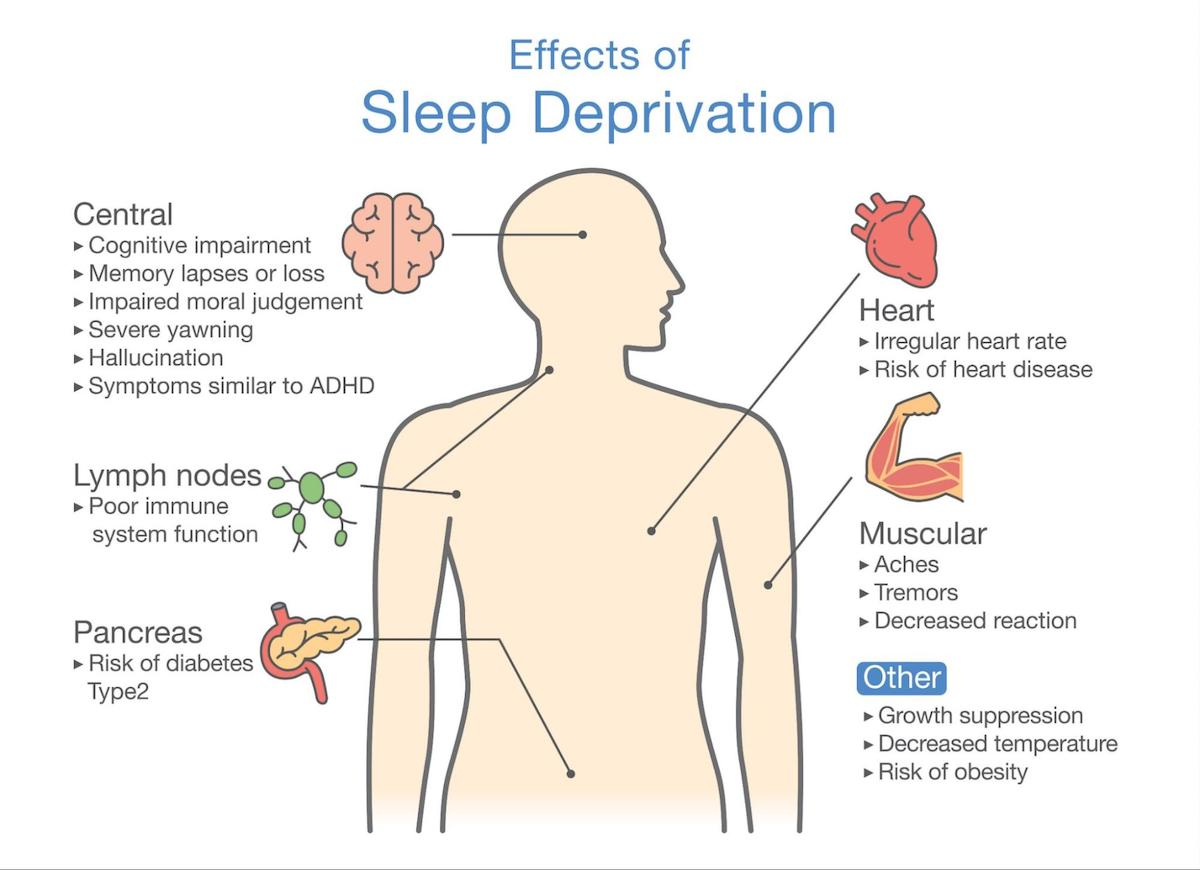 Drowsiness: Effects of Sleep Deprivation infographic