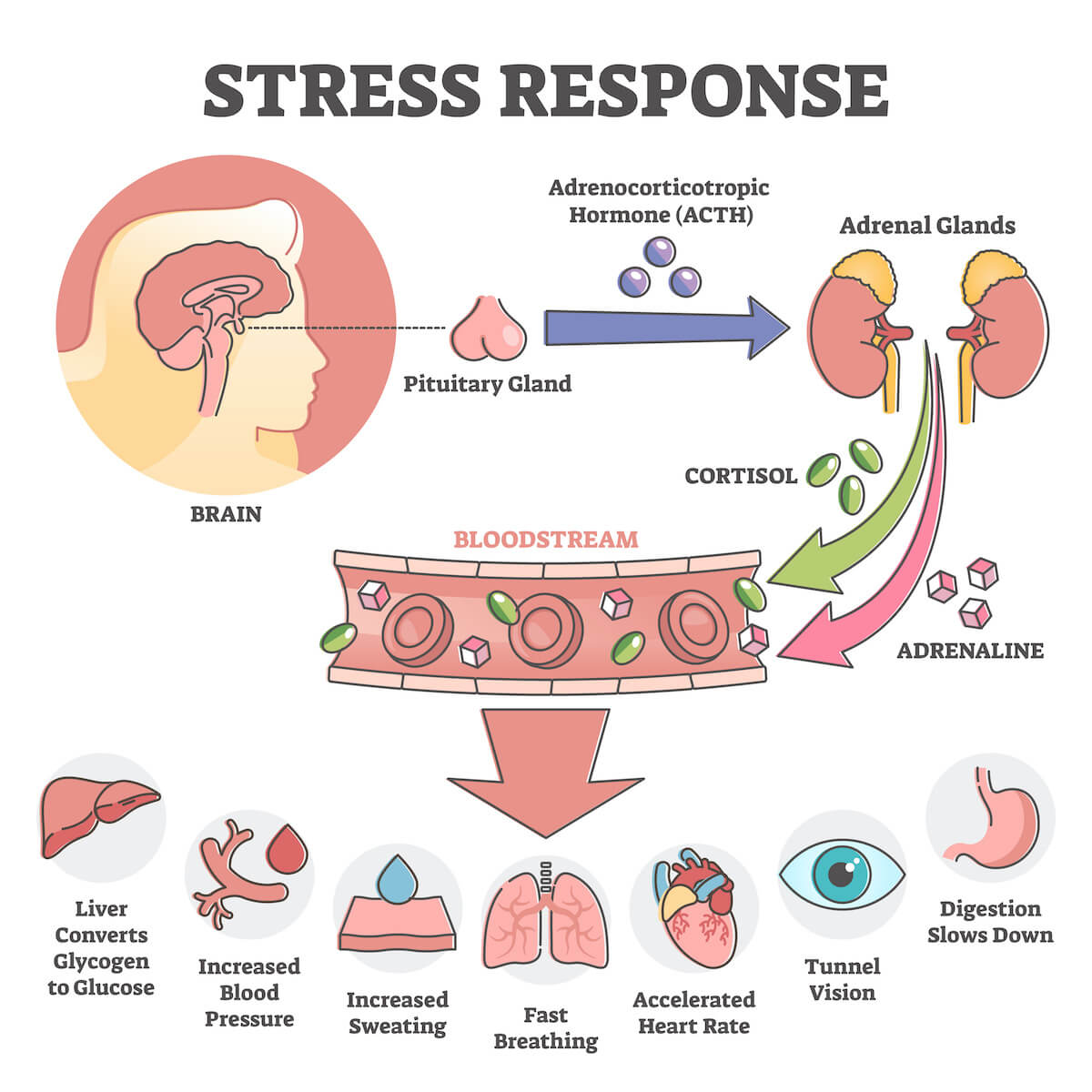 Anxiety and sleep: Stress Response infographic