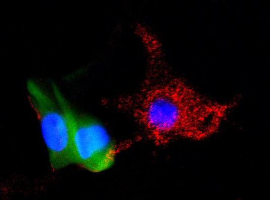 Photo of melanocytes derived from iPSC