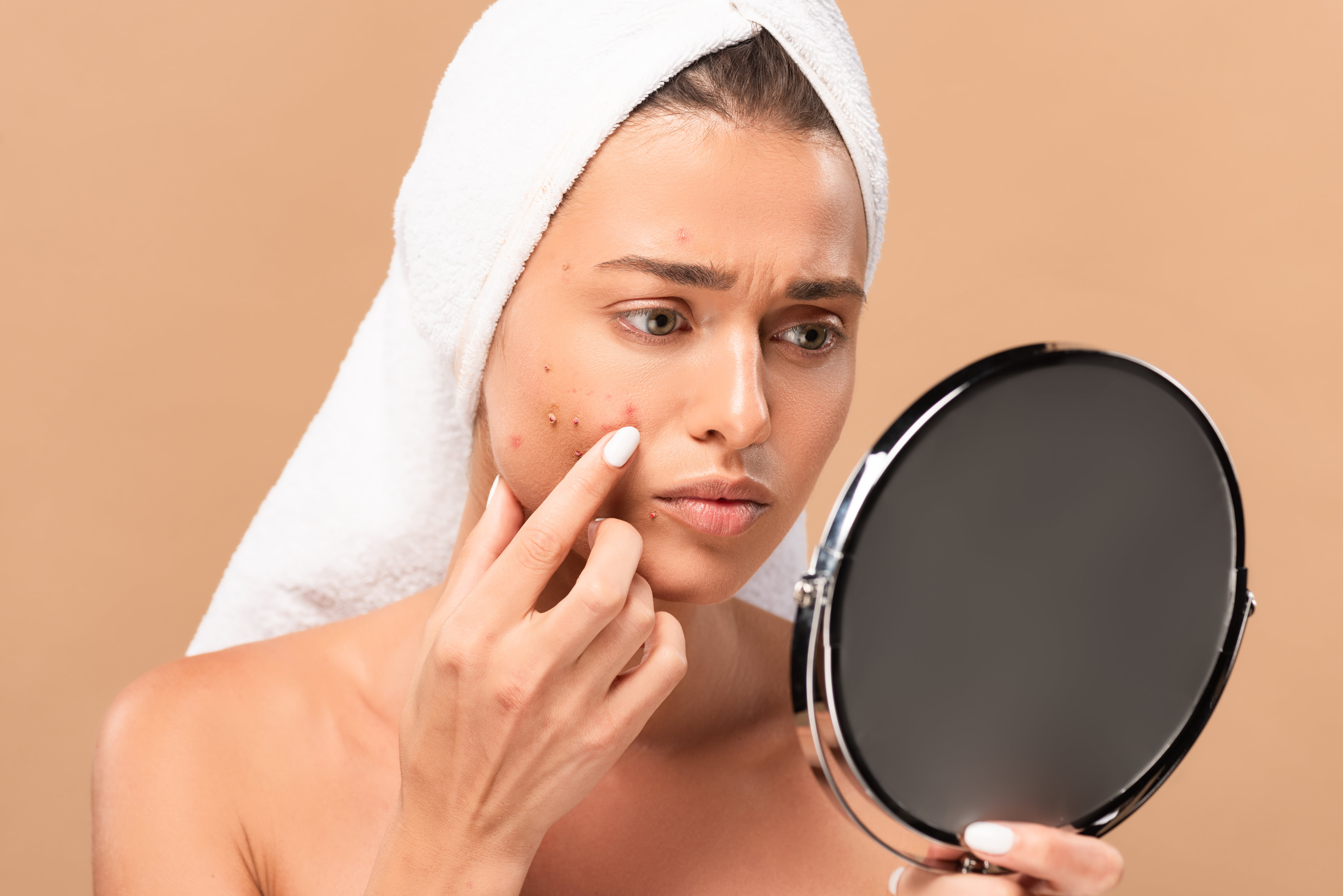 Photo of a girl showing acne problems