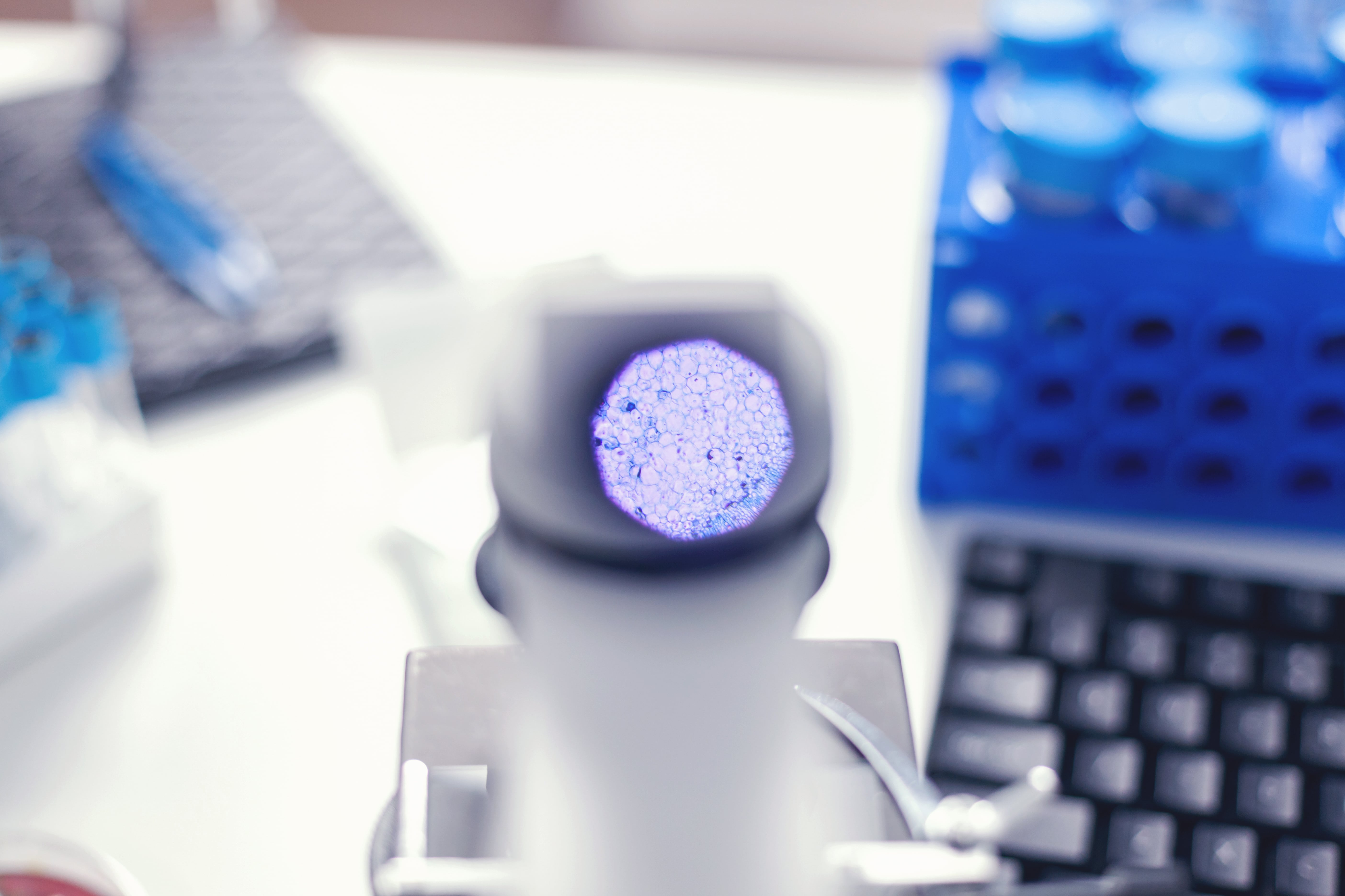 Photo of microscope with an insight of the observed cells