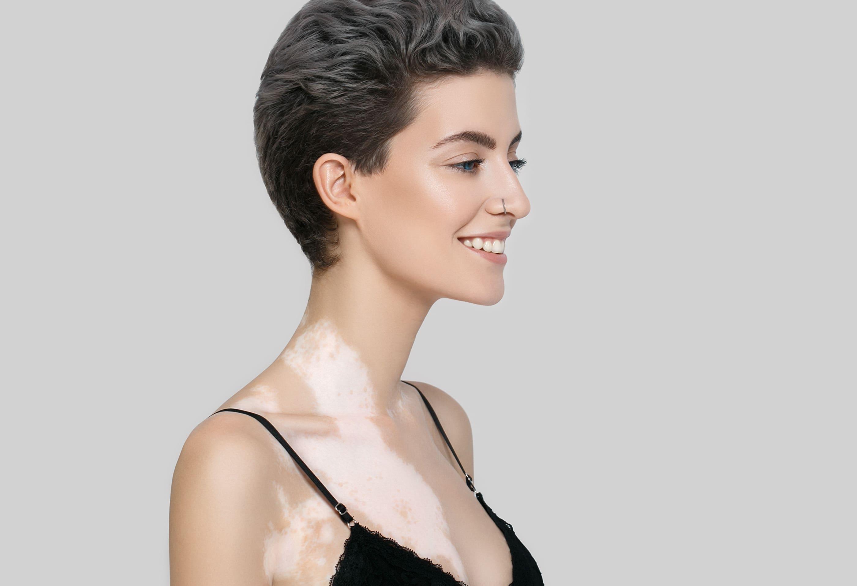 Photo of a woman with vitiligo a melanocyte dysfunction