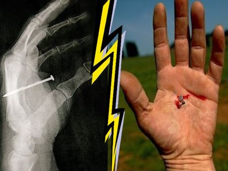 Nail Gun Injury and X-Ray