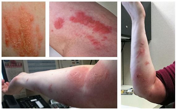 Examples what a poison ivy allergic reaction on the skin can look like