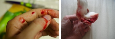 Bleeding Cut on Finger and Bloody Guaze
