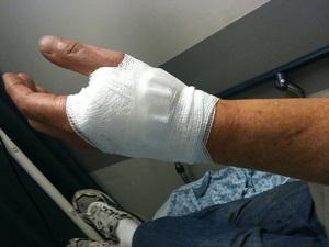 Bandaged Hand Injury