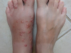 Fire Ant Bites on Feet