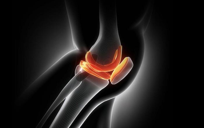Leguar - specijalizirani centar za koljeno - bol u koljenu