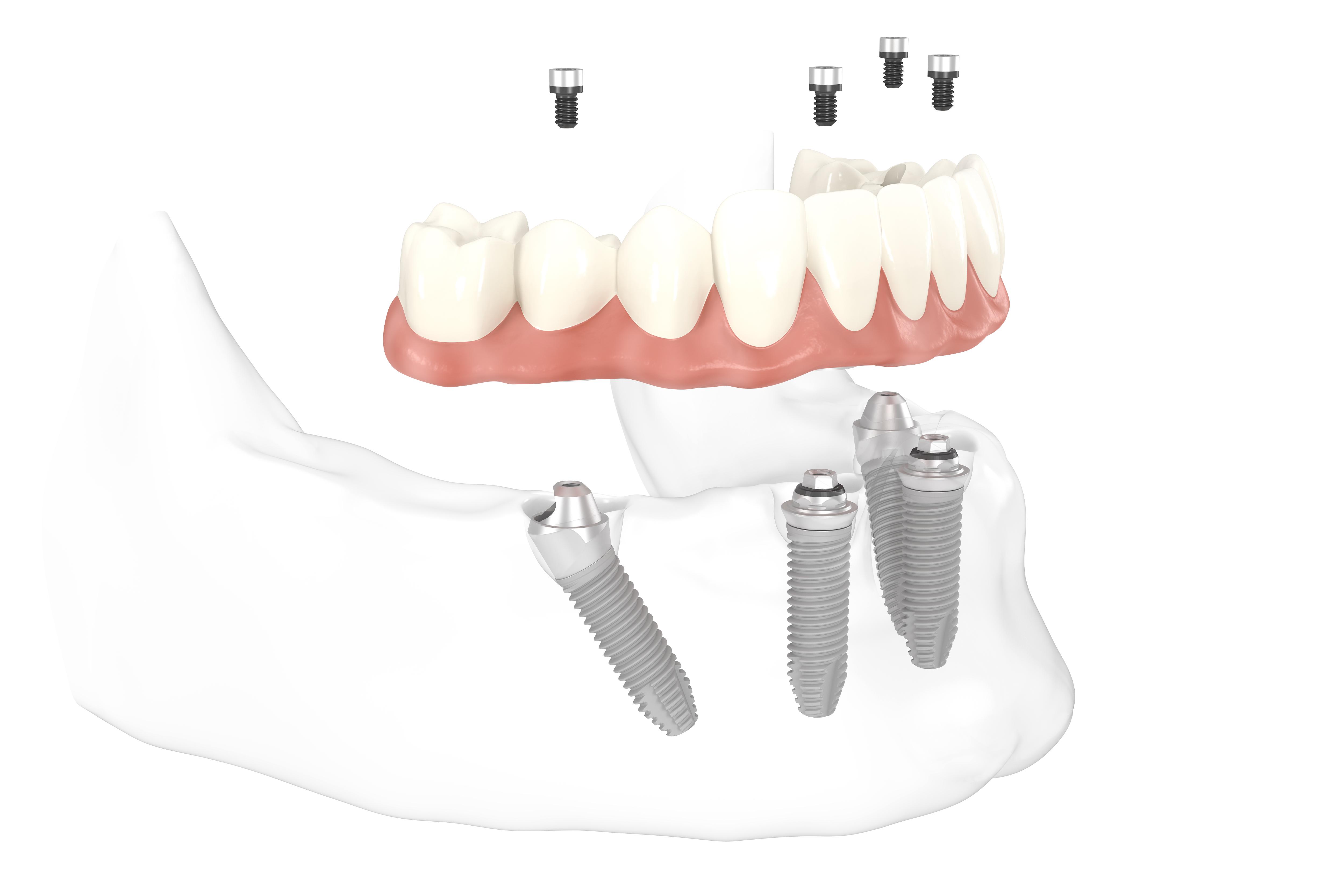 Behandlung mit All-on-4 Implantaten – Befestigung des Zahnersatzes