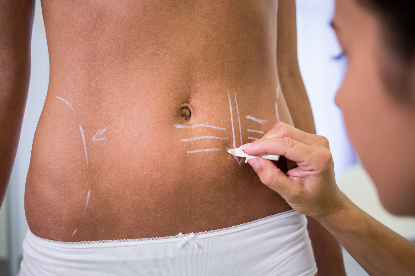What Is The Best Type of Tummy Tuck For You?