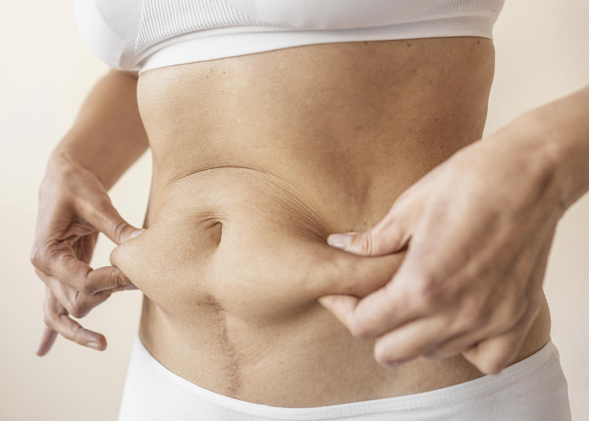 How Is A Tummy Tuck Procedure Done