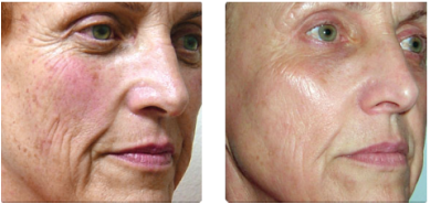 Laser 360 Before and After