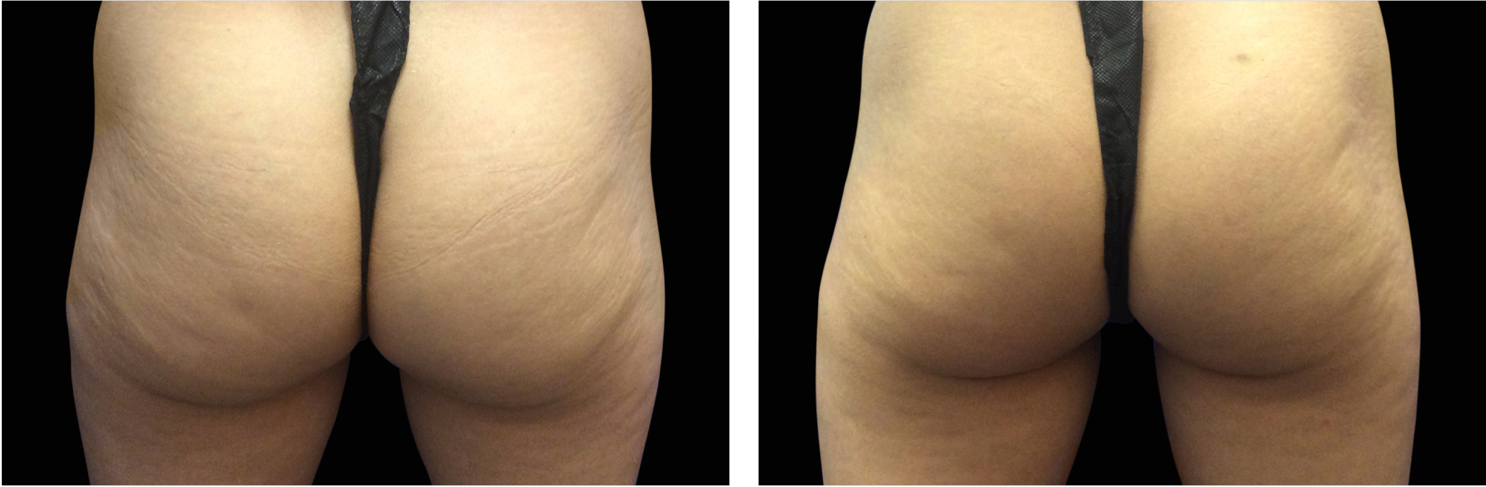 Emsculpt_Before_and_after_buttocks