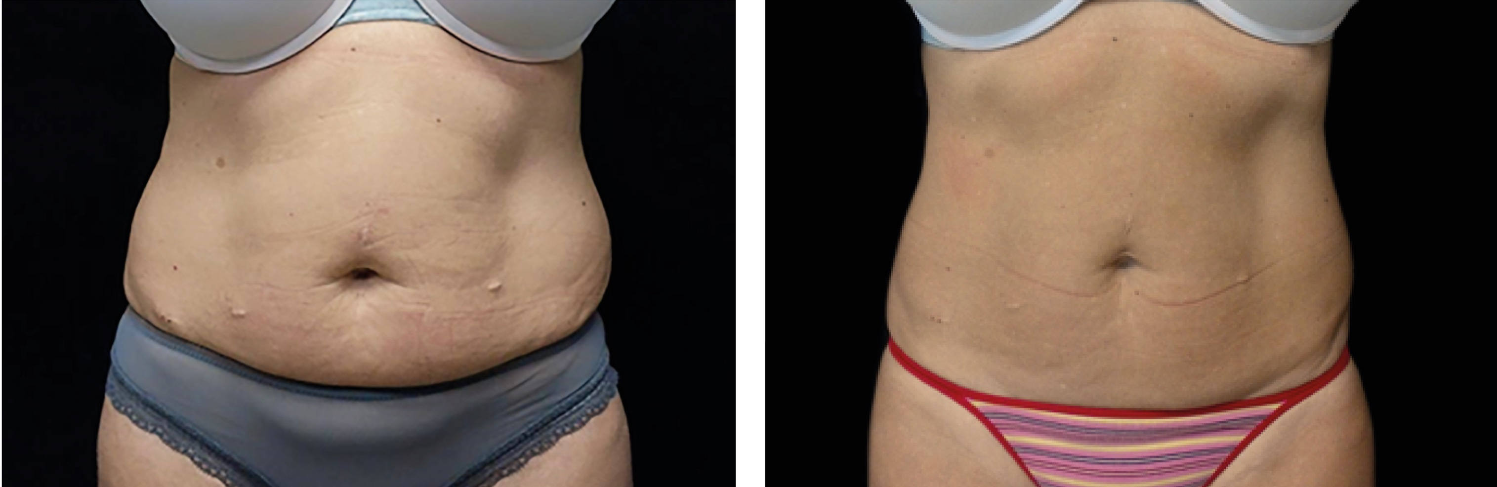 Emsculpt_before_and_after_stomach