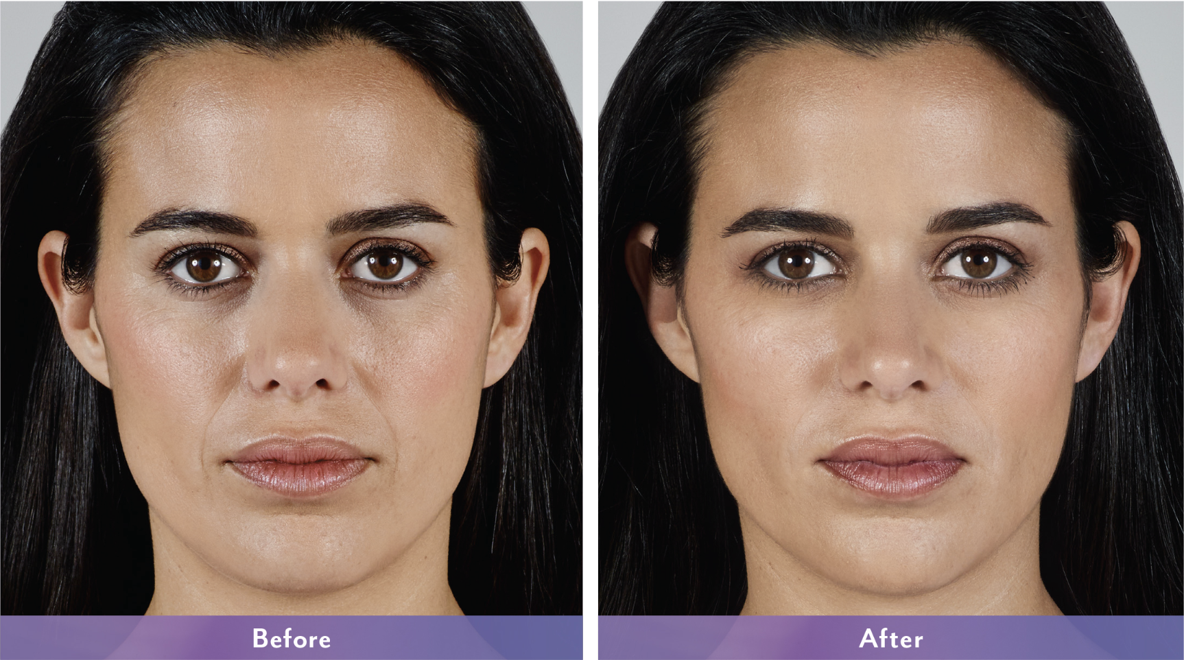 Before and After photos of Juvéderm Vollure XC patient