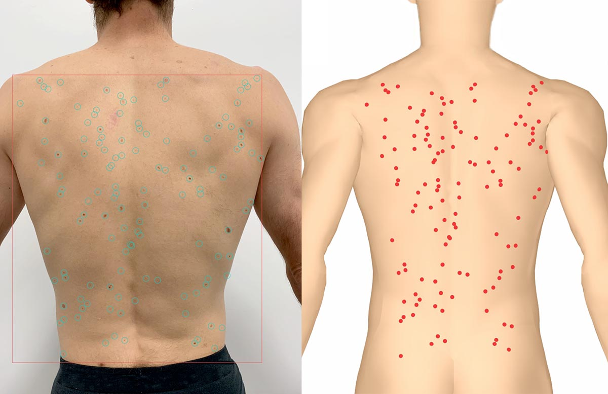 Moles from photograph of human back are mapped on a computer avatar back