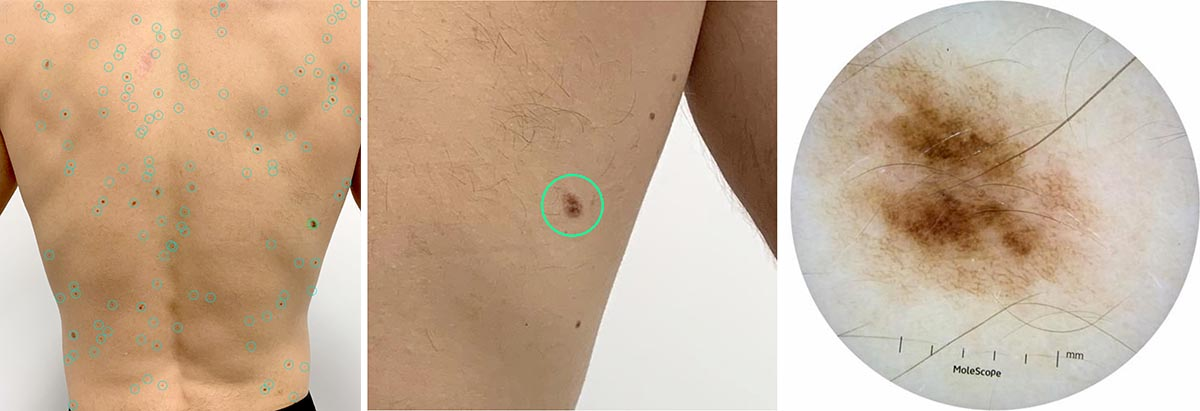 A suspect mole is identified, located and a high resolution dermascope image is taken for future reference
